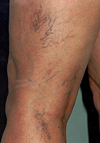 What are Spider Veins