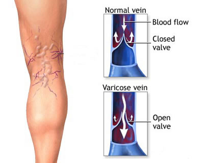 What are Varicose Veins