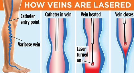 What is best treatment for varicose veins