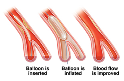 About angioplasty