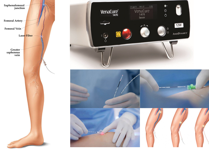 Laser treatment mumbai