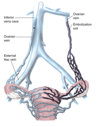 Pelvic Congestion Syndrome | VIR Clinic | Varicose Veins