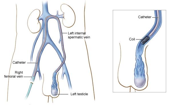 varicoseza cu ulcer)