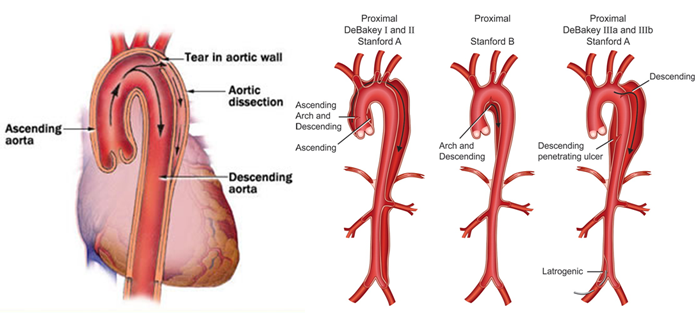 Aortic Dissection | Laser treatment in Mumbai
