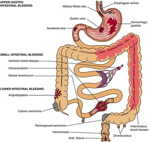 Gi Bleeding Vir Clinic Varicose Veins Varicose Veins