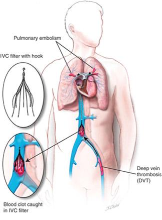 vena abdominală varicoseza