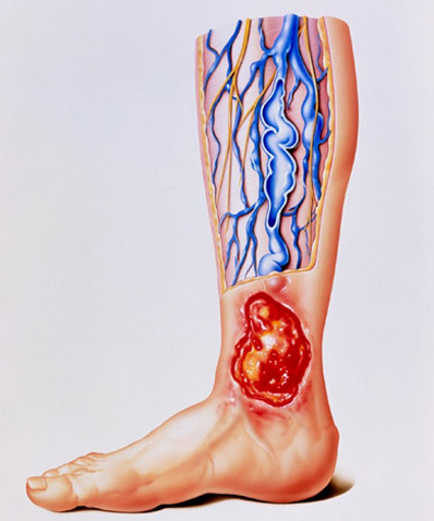 What Is A Varicose Or Venous Leg Ulcer